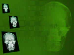 Skull X-ray PowerPoint Templates
