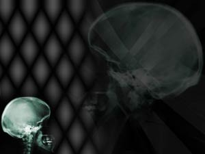 Skull X-ray PowerPoint Template