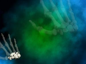 Carpals wrist bones 02 medicine powerpoint templates carpals wrist bones medicine powerpoint templates toneelgroepblik Image collections